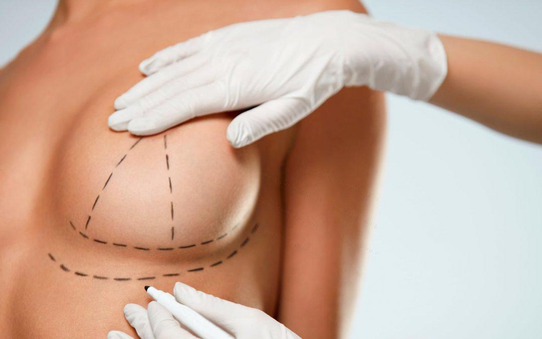 Conoce todo sobre la cirugía de aumento de senos denominada mamoplastia