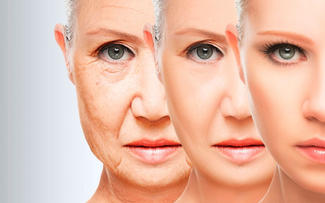 ¿Cuál es la edad ideal para realizarse una cirugía estética?