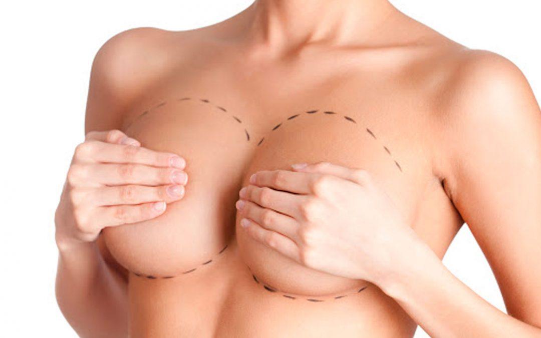 Mitos sobre las cirugías de pecho