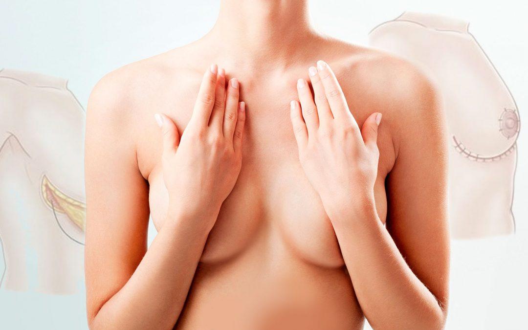 Mamoplastia de reducción, conoce todos los detalles